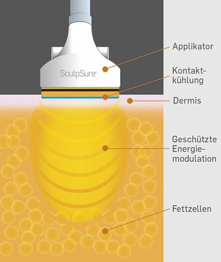 SculpSure Wirkweise illustration